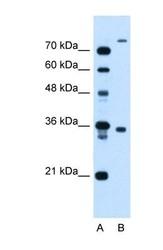 NBP1-59823 - TMEM231