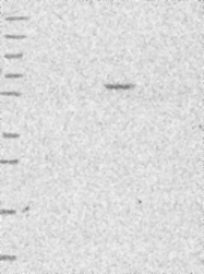 NBP1-89837 - KLHL35