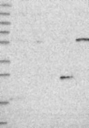 NBP1-89838 - KLHL35
