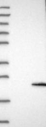 NBP1-85403 - FMR1NB