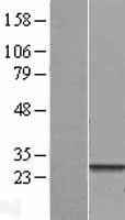 NBL1-10786 - FNDC4 Lysate