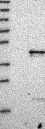 NBP1-88020 - IL20RB