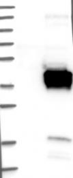 NBP1-85121 - FNDC8