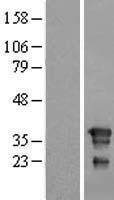NBL1-10787 - FNDC8 Lysate