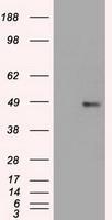 NBP1-47758 - FOXA1 / TCF3A