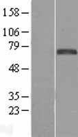 NBL1-10801 - FOXC1 Lysate