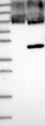 NBP1-84670 - FOXF1 / FKHL5