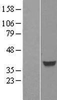 NBL1-10804 - FOXH1 Lysate
