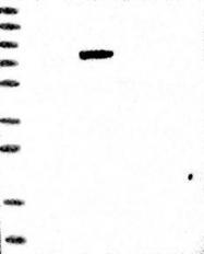 NBP1-84671 - FOXM1