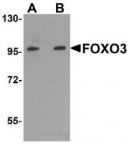 NBP1-77380 - FOXO3 / FKHRL1