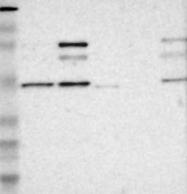 NBP1-89410 - FOXP1