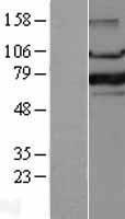 NBL1-10816 - FOXP1 Lysate
