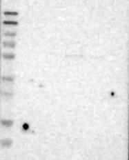 NBP1-86672 - FOXP2