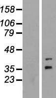 NBL1-10820 - FOXR1 Lysate
