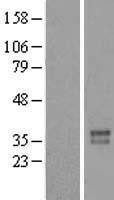 NBL1-10821 - FOXR2 Lysate