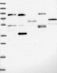 NBP1-91911 - FOXS1 / FKHL18