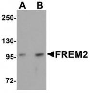 NBP1-77181 - FREM2