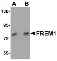 NBP1-77180 - FREM1