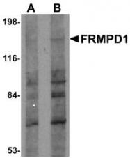 NBP1-77082 - FRMPD1