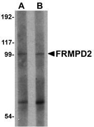 NBP1-77083 - FRMPD2