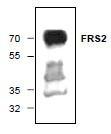 NBP1-45579 - FRS2