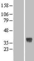 NBL1-10839 - FRZB Lysate