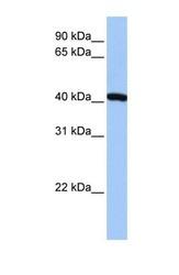 NBP1-52940 - FTSJD1