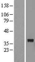 NBL1-10853 - FTSJ1 Lysate