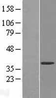 NBL1-17627 - FUR1 Lysate