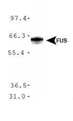 NBP1-50623 - FUS / TLS