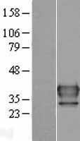 NBL1-13490 - FUS2 Lysate