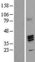 NBL1-10867 - FUT7 Lysate