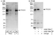 NBP1-47265 - FYCO1