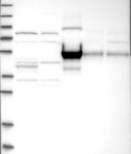 NBP1-88267 - Complement factor I