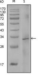 NBP1-51555 - Coagulation factor VIII (F8)
