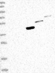 NBP1-89034 - CD95 / FAS
