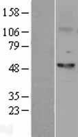 NBL1-10841 - Fascin Lysate