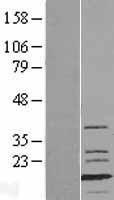 NBL1-13423 - Fast skeletal myosin light chain 1 Lysate