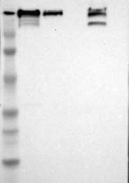 NBP1-84733 - Fatty acid synthase