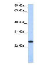 NBP1-54948 - Ferritin light chain (FTL)
