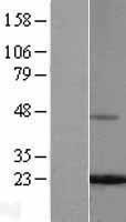 NBL1-10851 - Ferritin Light Chain Lysate