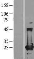 NBL1-10850 - Ferritin Lysate