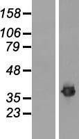 NBL1-10607 - Fibrillarin Lysate