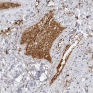 NBP1-87448 - Fibrinogen gamma chain
