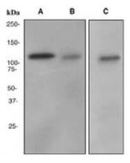 NBP1-42066 - Fibrinopeptide A