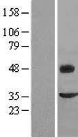 NBL1-10778 - Fibromodulin Lysate
