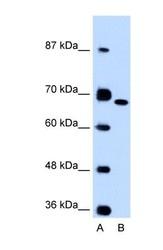 NBP1-53122 - Fibronectin