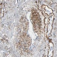 NBP1-90101 - Fibulin-5