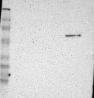 NBP1-90100 - Fibulin-5