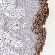 NBP1-87528 - Filaggrin